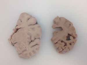 Brain X sections
